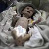 Cả thế giới rúng động trước hình ảnh em bé Syria suy dinh dưỡng nặng