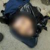 Công an tiến hành khâu vết thương trên mặt phần đầu người đàn ông nghi bị chặt bỏ lại thùng rác