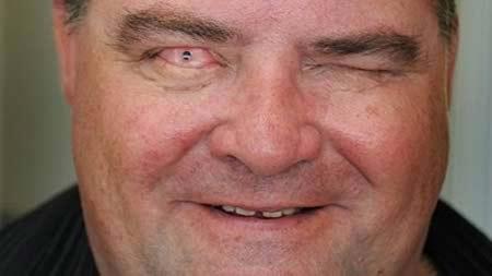 Nhờ phương pháp cấy răng vào mắt độc đáo, ông Martin đã tìm lại được ánh sáng.