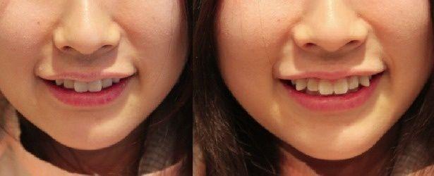 Một cô gái trước và sau khi phẫu thuật thẩm mỹ để có được một hàm răng khểnh