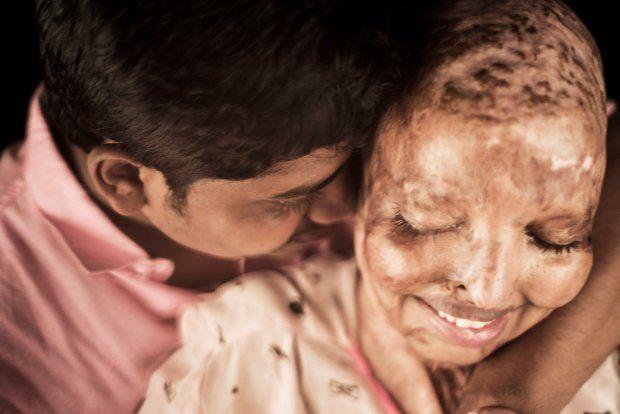 Phép màu tình yêu đã xảy ra với cô gái phải sống cuộc đời đau khổ vì bị tạt axit năm 15 tuổi