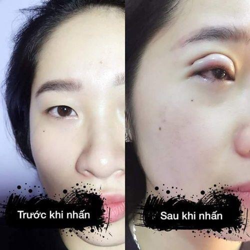 Hình ảnh trước và sau cắt mí