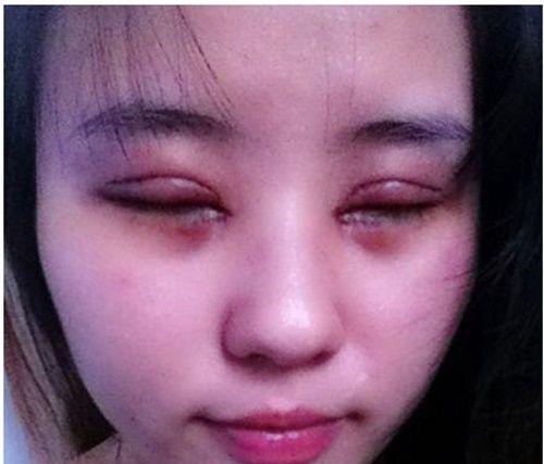 Cô gái xinh xắn nay phải hứng chịu những đau đớn chỉ vì làm đẹp