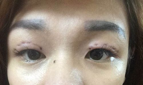 """Đôi mắt """"biến dạng"""" như trong phim kinh dị chỉ vì nhấn mí hỏng khiến dân mạng giật mình"""