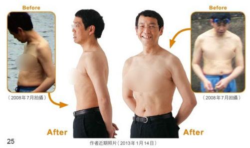 Bác sĩ Masashi Kawamura đã áp dụng thành công phương pháp giảm mỡ bụng này.