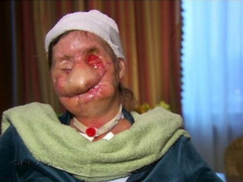 Chỉ vì thay đổi kiểu tóc, người phụ nữ này đã bị con tinh tinh lao vào cắn xé, hủy hoại khuôn mặt
