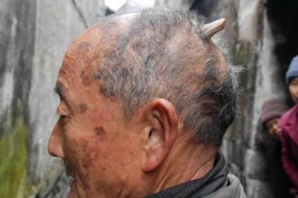Chiếc sừng sau đầu của ông Huang.