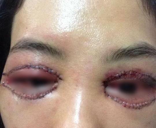 Mí mắt của chị L.A. sau phẫu thuật cắt mí