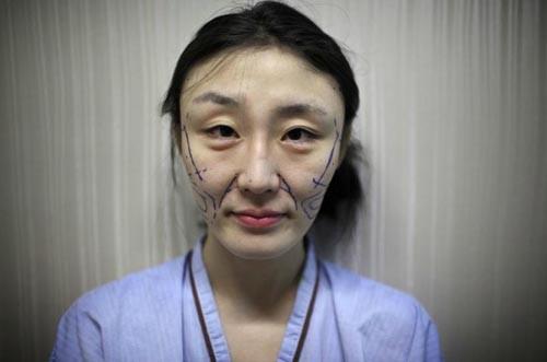 Trải qua 40 cuộc PTTM trong 4 năm, bà già 50 tuổi trở nên trẻ như gái 20, chồng không dám lại gần