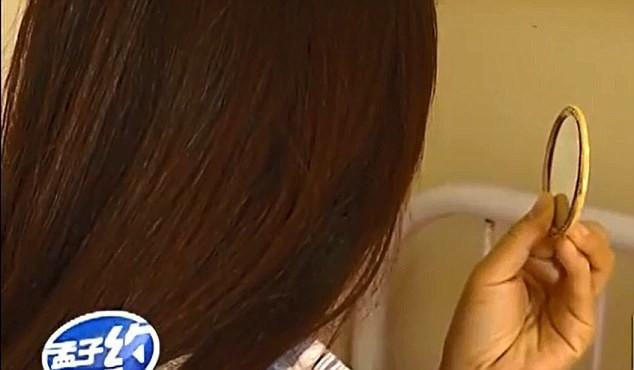 Người phụ nữ nói rằng cô đồng ý cho bác sĩ kia thực hiện phẫu thuật trên mặt mình vì giá thành rẻ