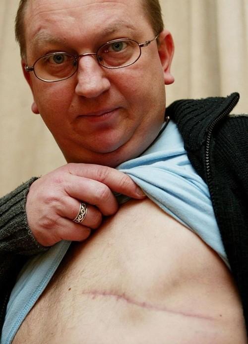 Căn bệnh ung thư vú khiến Stuar phải cắt bỏ một bên vú trái của mình.
