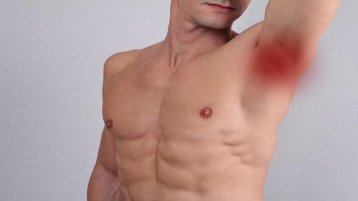 Cảnh báo: Đừng chủ quan, cánh mày râu cũng cần phải cẩn thận đề phòng với ung thư vú
