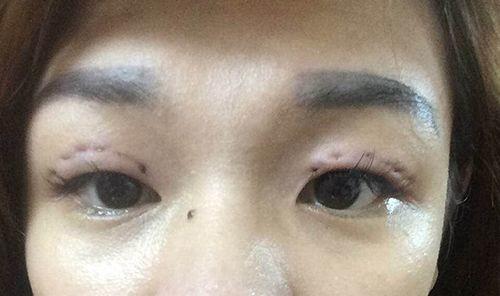 Lại thêm một ca nhấn mí lỗi khiến đôi mắt biến dạng kinh hãi gây