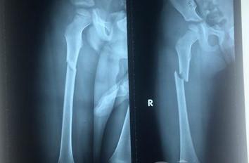 Phim chụp X-quang chân của Thiện bị gãy (Ảnh:Zing)