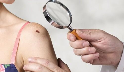 Những dấu hiệu bất thường và khó nhận biết cảnh báo cơ thể bạn đang mắc bệnh nguy hiểm