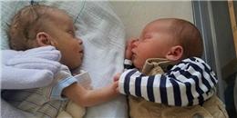 Xúc động bé sơ sinh nắm chặt tay em sinh đôi bại não trong lồng nuôi