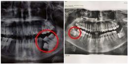 Mang tiếng là răng