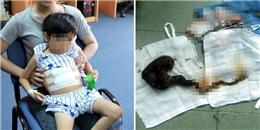 TP.HCM: Cấp cứu bé gái 7 tuổi nguy kịch vì thích ăn tóc thay cơm
