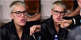 yan.vn - tin sao, ngôi sao - Sau khi gây sốt với diện mạo soái ca, Justin Bieber lộ mặt mụn kém sắc