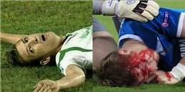 Những cái chết thương tâm trên sân cỏ khiến NHM bàng hoàng