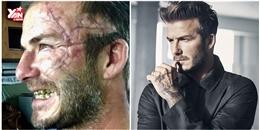 David Beckham gây sốc với gương mặt đầy sẹo và hàm răng vàng ố