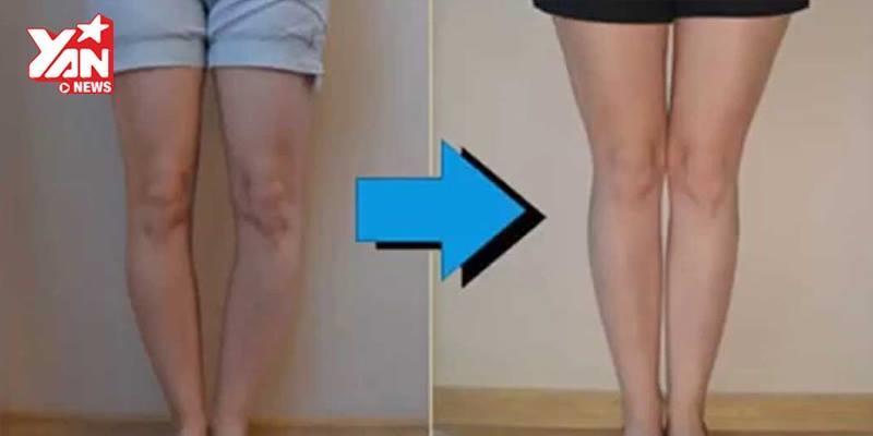 Cận cảnh phương pháp phẫu thuật cho người bị chân vòng kiềng