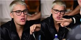 """yan.vn - tin sao, ngôi sao - Hóa ra nguyên nhân mặt Justin Bieber """"nở hoa"""" là do nghiện nặn mụn?"""