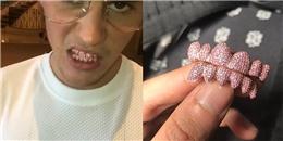 yan.vn - tin sao, ngôi sao - Justin Bieber chi hơn 341 triệu tậu răng giả bằng đá quý hồng lấp lánh
