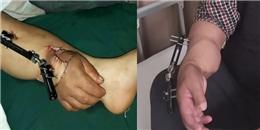 Điều không tưởng với bàn tay sống nhờ trên bắp chân một người đàn ông