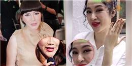 Những bộ phận biến dạng trên mặt sao Việt khi phẫu thuật thẩm mỹ