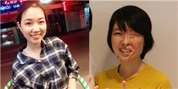 Cô gái bị tạt axit bỏng 3/4 gương mặt có cơ hội phục hồi 80% nhan sắc