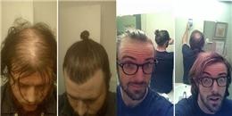 Hé lộ sự thật gây choáng đằng sau tóc búi 'trendy' của các quý ông