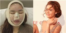 Sao Việt gây xôn xao khi công khai quá trình phẫu thuật thẩm mỹ