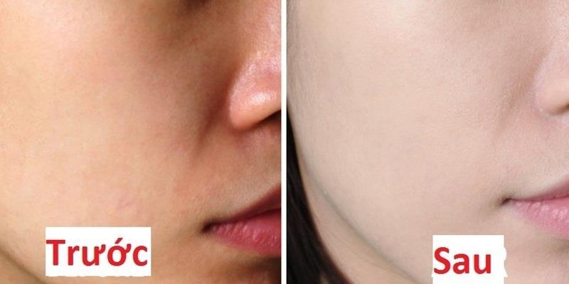 Chăm sóc da như con gái Hàn Quốc, da xấu cỡ nào cũng đẹp lên