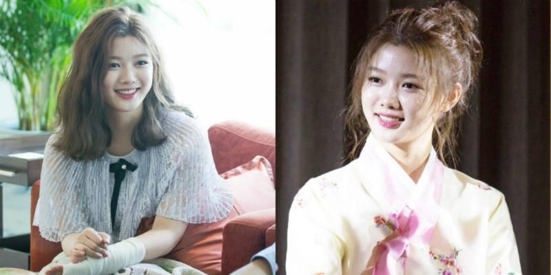yan.vn - tin sao, ngôi sao - Tay bó bột, Kim Yoo Jung vẫn xinh như nữ thần, nhí nhố đùa với fan