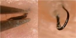 Màn nhổ lông mọc ngược rõ đến mức 4 triệu người không tin vào mắt mình