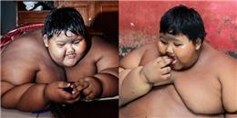 Cậu bé nặng nhất thế giới phải cắt một phần bao tử để giảm cân