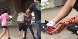 Thiếu nữ cầm ống sắt đánh vỡ đầu chàng trai vì bị chửi từ 2 năm trước
