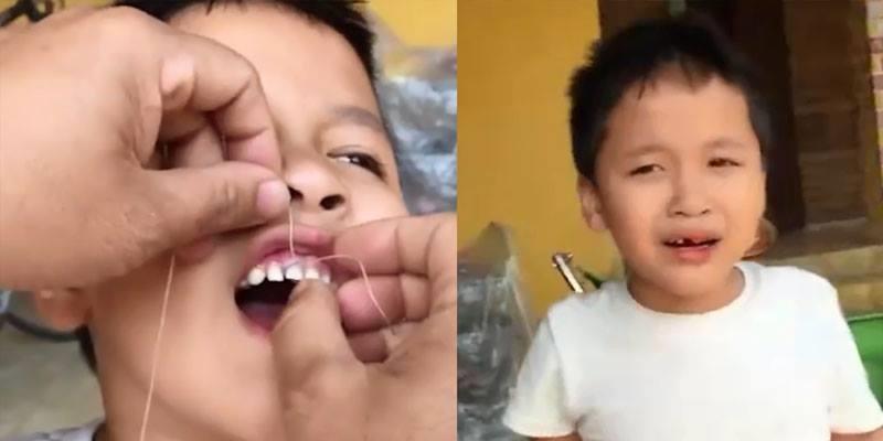 Cận cảnh màn nhổ răng bằng xe máy khiến bạn cười chảy nước mắt