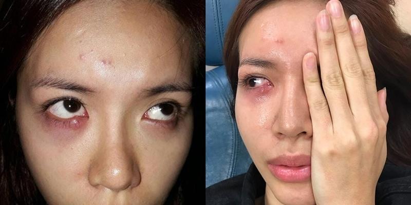 Minh Tú nhập viện trước thềm chung kết Asia's Next Top Model