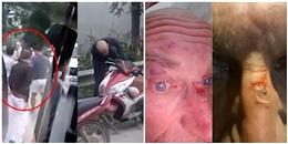 Vụ 5 thanh niên hành hung du khách ở Sapa: 'Ông Tây' to tiếng trước