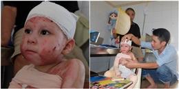 Sự sống kỳ diệu của bé gái 5 tuổi bỏng 71% cơ thể, 5 lần phẫu thuật thay da