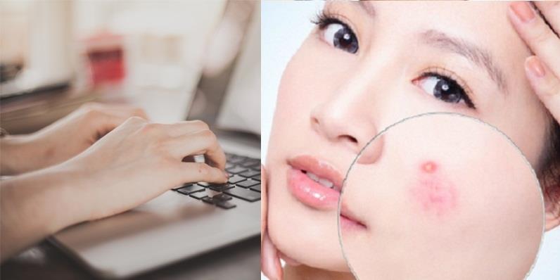5 sai lầm khi sử dụng máy tính khiến da vừa xấu vừa nổi mụn đầy mặt