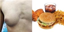 """Chàng trai sở hữu """"bộ ngực phụ nữ"""" nghi do quá nghiền đồ ăn nhanh"""