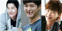"""""""Cười té ghế"""" khi thấy các mỹ nam Hàn Quốc bất ngờ bị… sún răng"""
