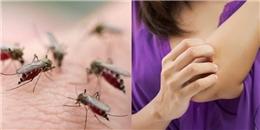 5 lý do khiến bạn bị muỗi đốt nhiều hơn người khác