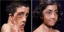 Cô bé có gương mặt biến dạng kinh hoàng vì bỏng nặng 'lột xác' sau 12 lần phẫu thuật