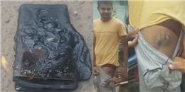 Hết hồn với vụ cháy nổ điện thoại khiến bỏng nặng đùi một người Ấn Độ