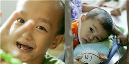 Lũ nhóc đầu trọc, oằn mình 'cõng' ung thư... chưa một ngày được sống là trẻ con