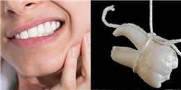 Khi nào thì nên nhổ cái răng khôn sẽ khiến bạn đau muốn khóc nếu nó mọc?